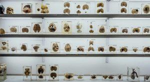 Human Brain Museum